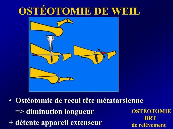 OSTÉOTOMIE DE WEIL