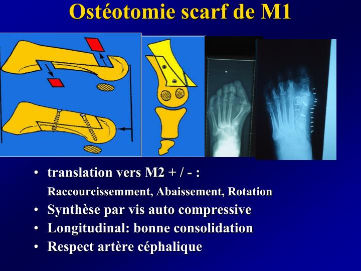 Ostéotomie scarf de M1