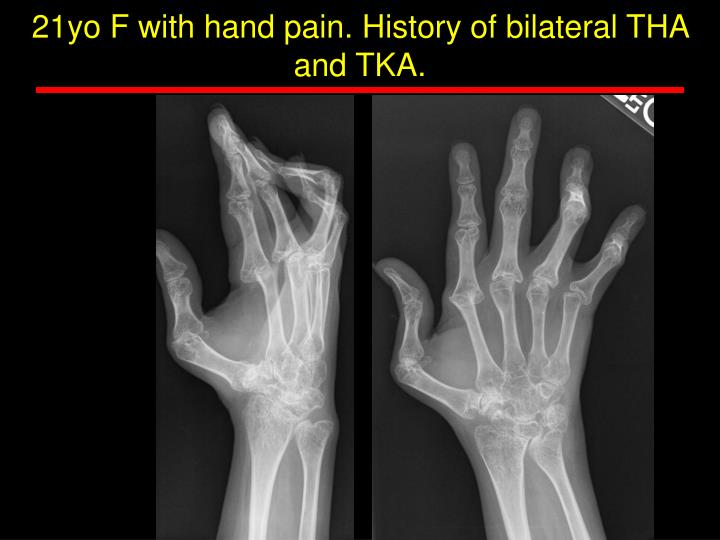 21yo F with hand pain. History of bilateral THA and TKA.