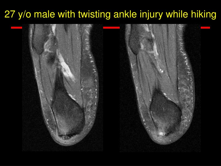27 y/o male with twisting ankle injury while hiking