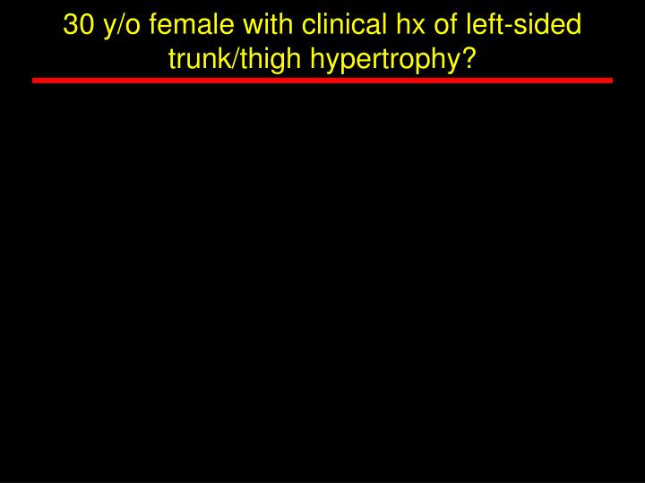 30 y/o female with clinical hx of left-sided trunk/thigh hypertrophy?