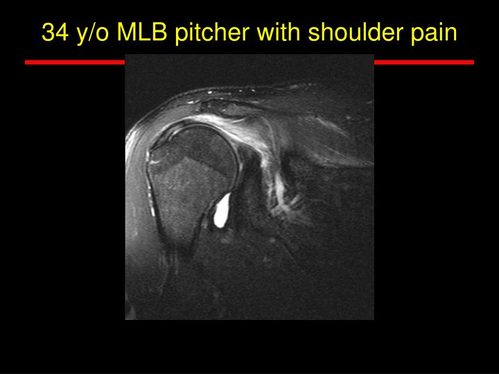 34 y/o MLB pitcher with shoulder pain