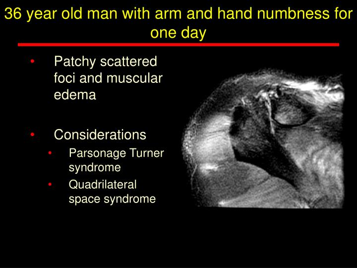 36 year old man with arm and hand numbness for one day