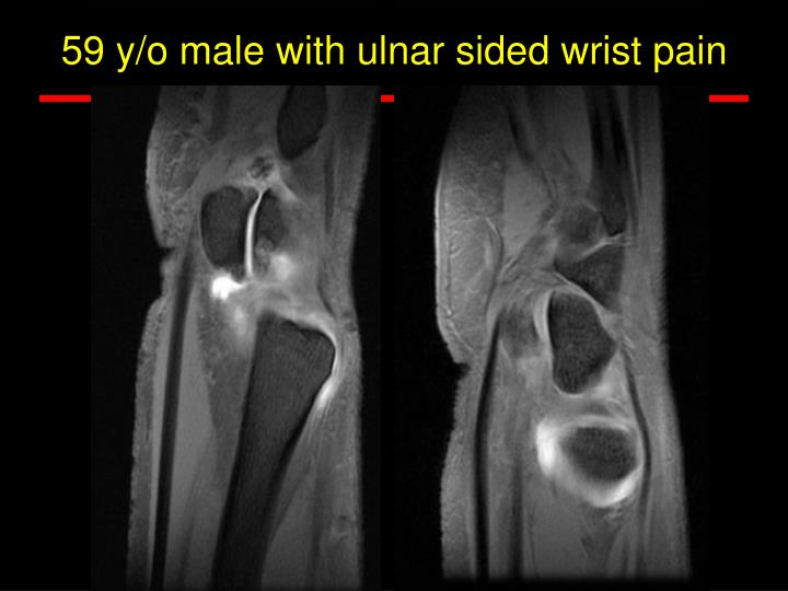 59 y/o male with ulnar sided wrist pain