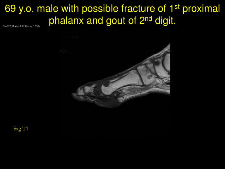 69 y.o. male with possible fracture of 1