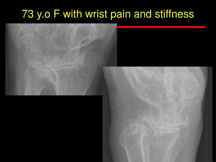 73 y.o F with wrist pain and stiffness
