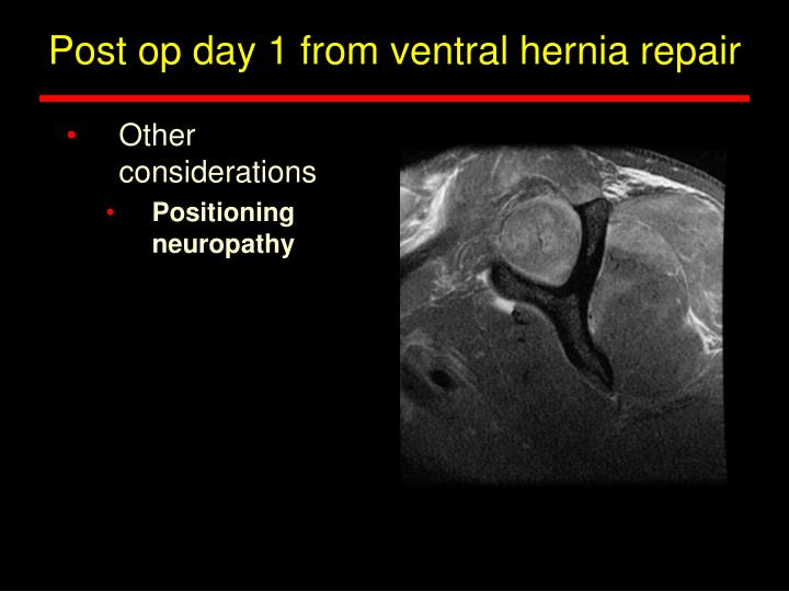 Post op day 1 from ventral hernia repair