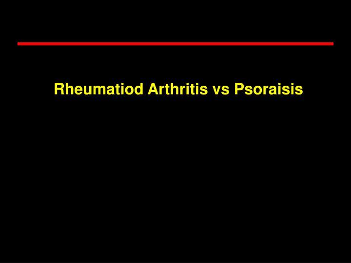 Rheumatiod Arthritis vs Psoraisis