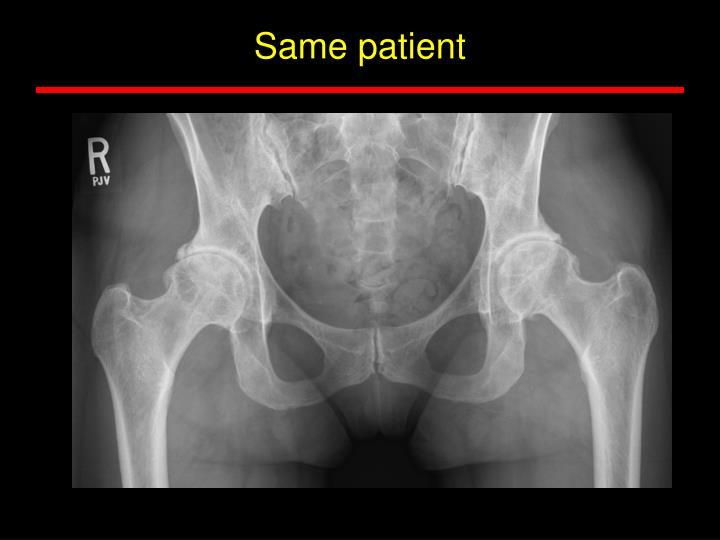 Same patient