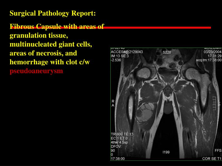 Surgical Pathology Report: