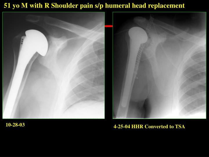 51 yo M with R Shoulder pain s/p humeral head replacement