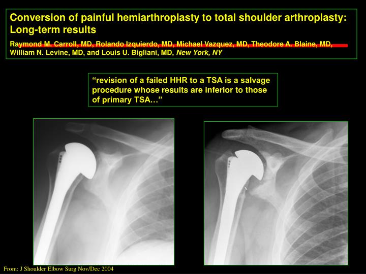 Conversion of painful hemiarthroplasty to total shoulder arthroplasty: Long-term results