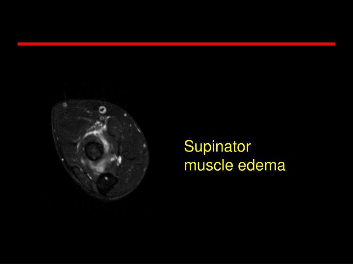 Supinator muscle edema
