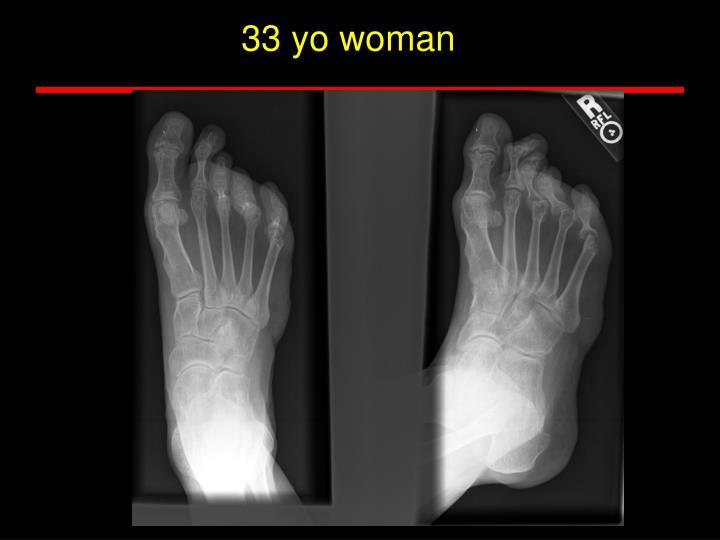 33 yo woman