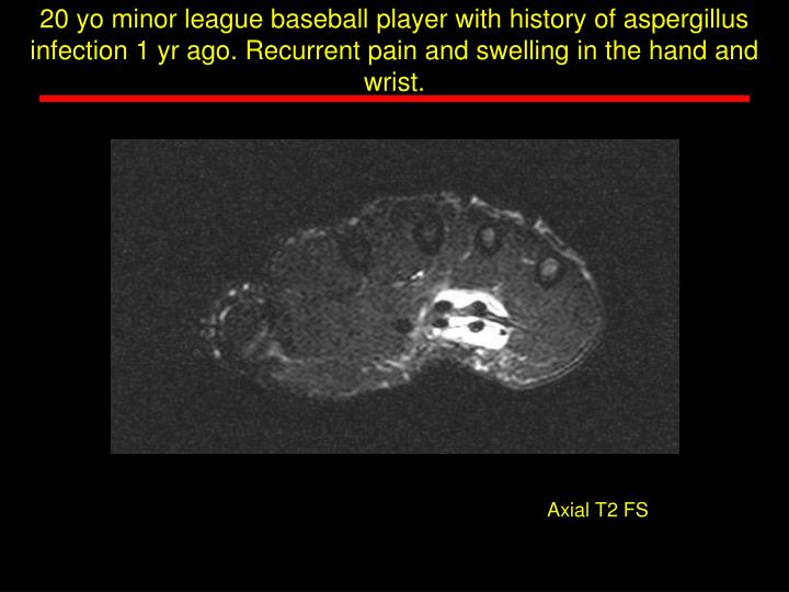 20 yo minor league baseball player with history of aspergillus infection 1 yr ago. Recurrent pain and swelling in the hand and wrist.