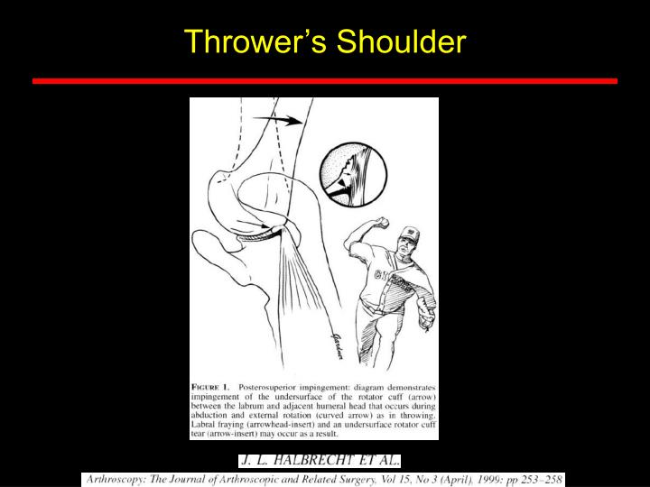 Thrower's Shoulder