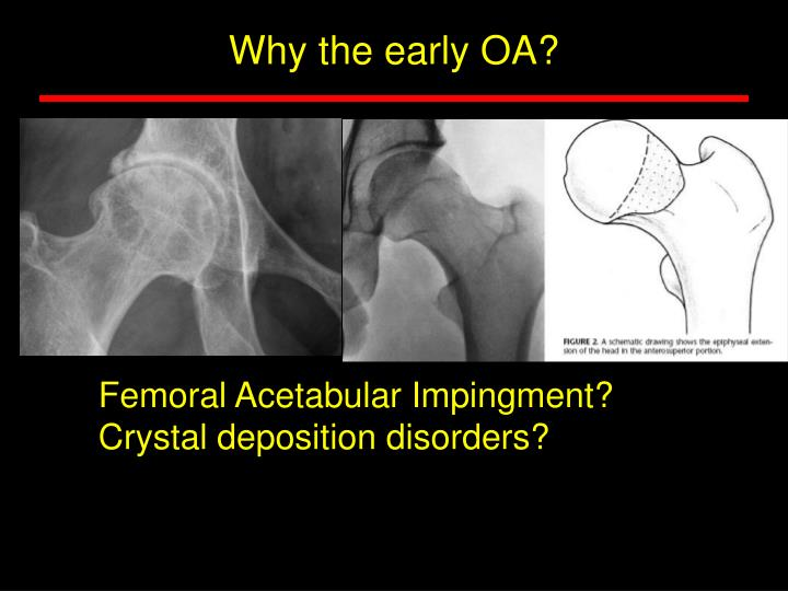 Why the early OA?