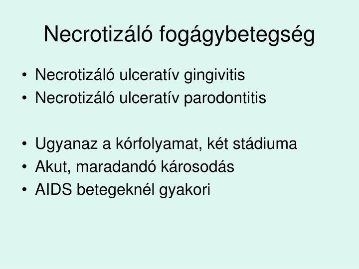 Necrotizáló fogágybetegség