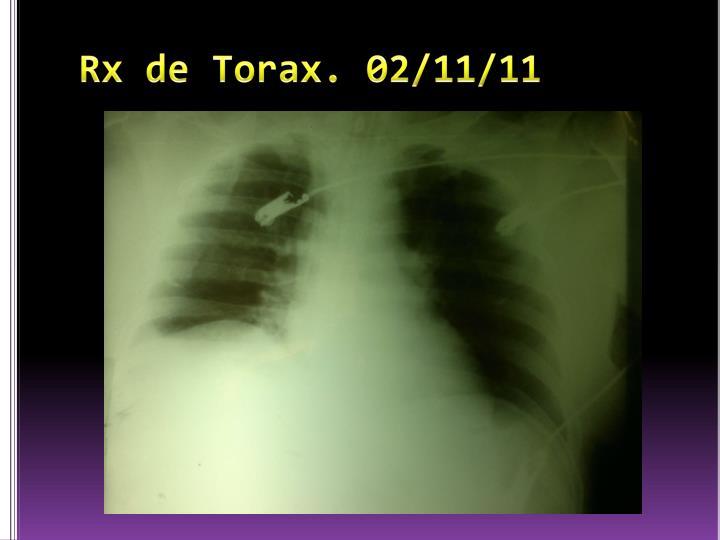 Rx de Torax. 02/11/11