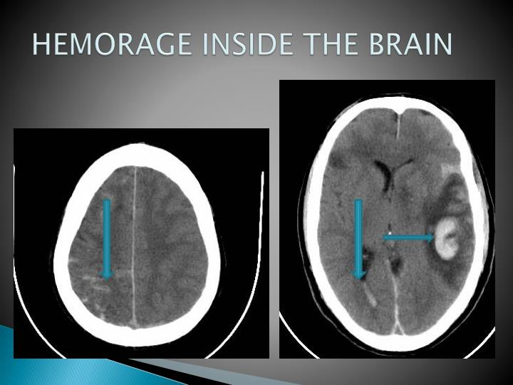 HEMORAGE INSIDE THE BRAIN