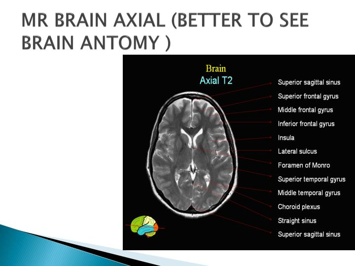 MR BRAIN AXIAL (BETTER TO SEE BRAIN ANTOMY )
