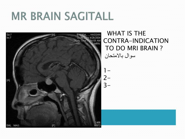 MR BRAIN SAGITALL