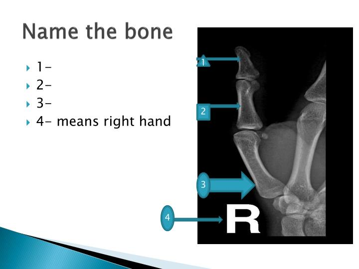 Name the bone