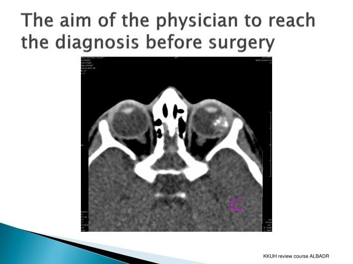 The aim of the physician to reach the diagnosis before surgery
