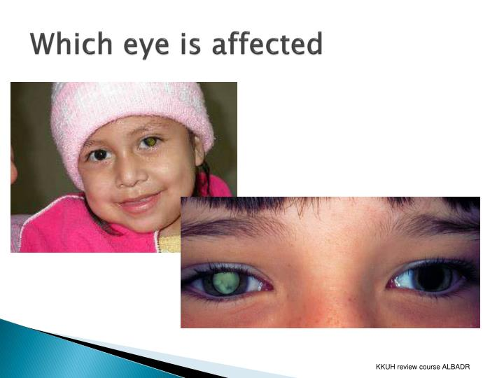 Which eye is affected