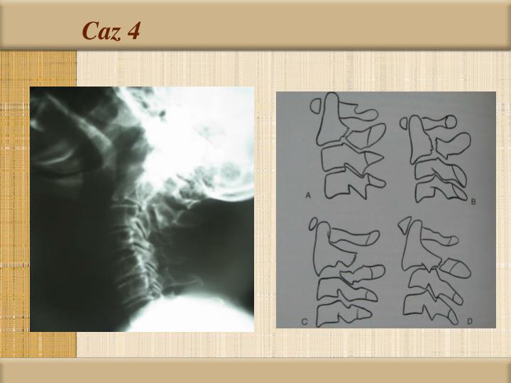 Caz 4