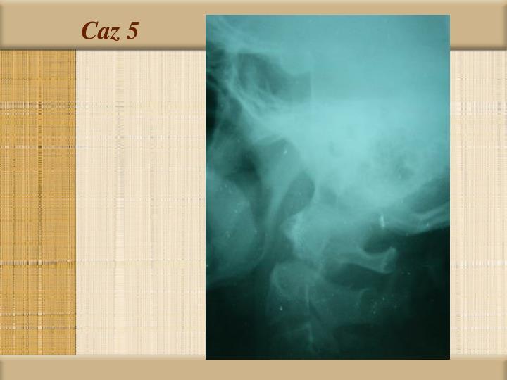 Caz 5