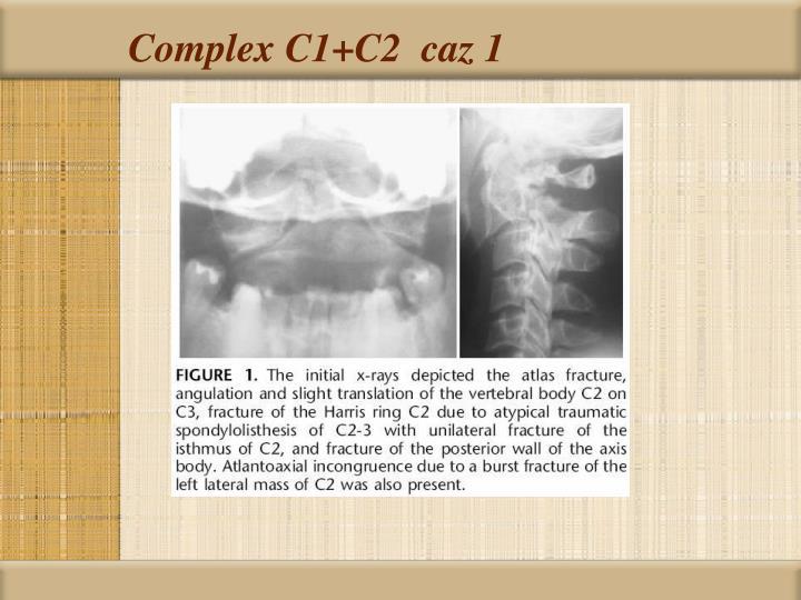 Complex C1+C2  caz 1