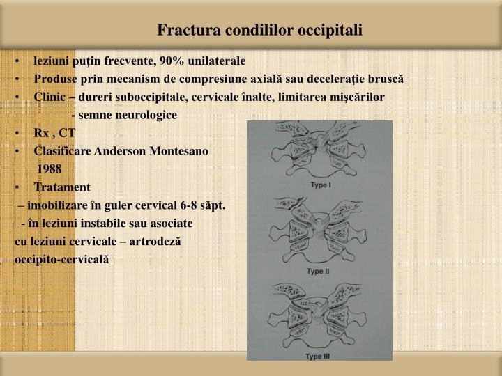 Fractura condililor occipitali
