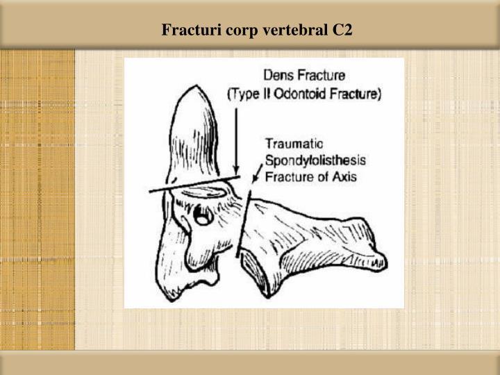 Fracturi corp vertebral C2