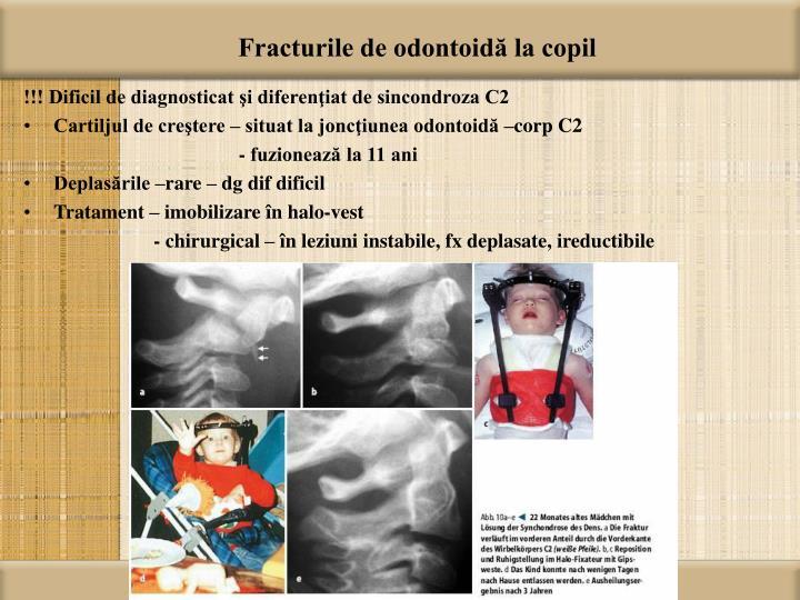 Fracturile de odontoidă la copil