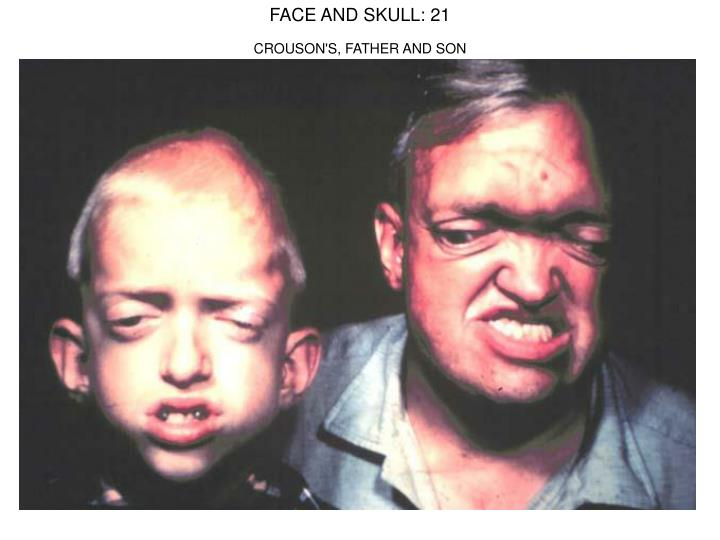 FACE AND SKULL: 21