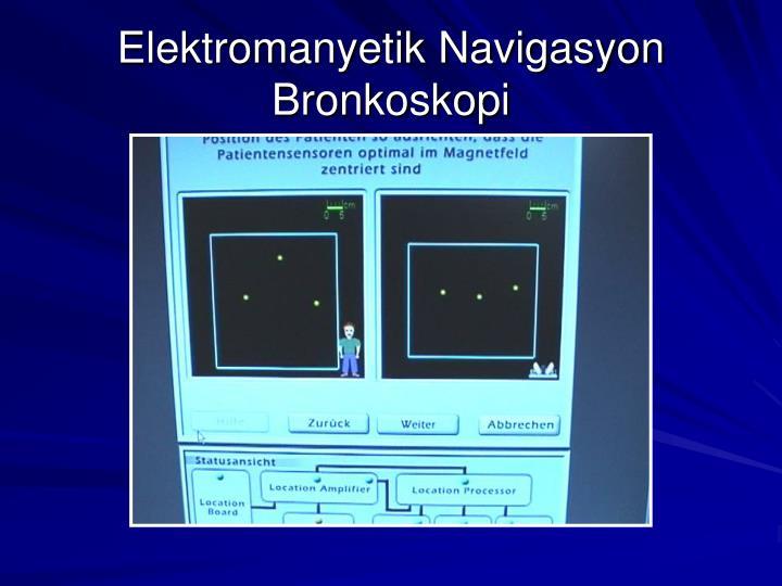 Elektromanyetik Navigasyon Bronkoskopi