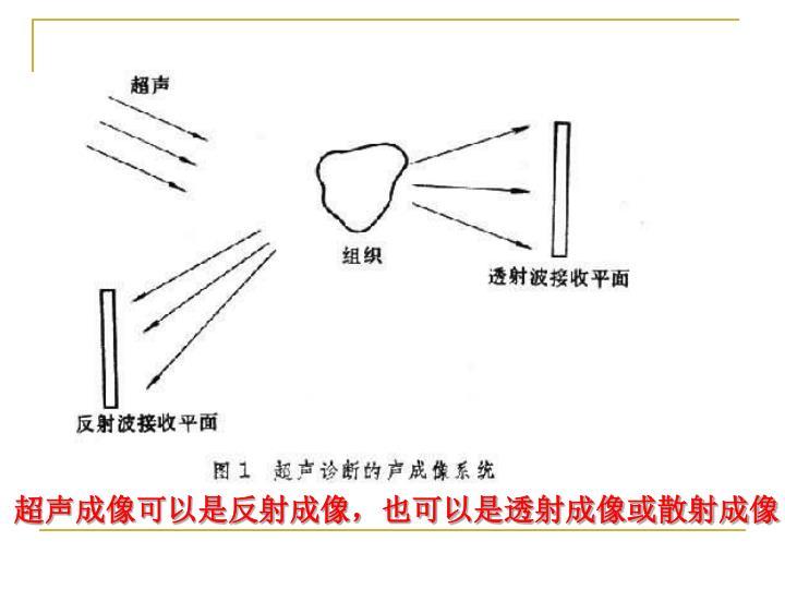 超声成像可以是反射成像,也可以是透射成像或散射成像