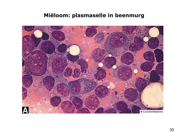 Miëloom: plasmaselle in beenmurg