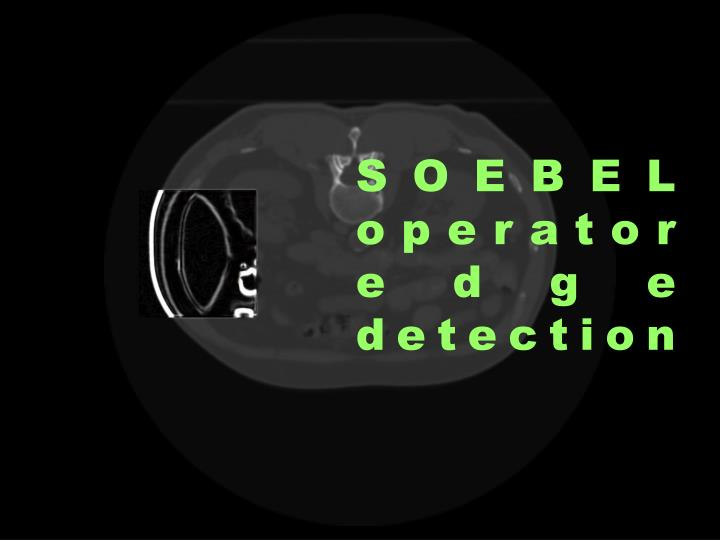 SOEBEL operator edge detection