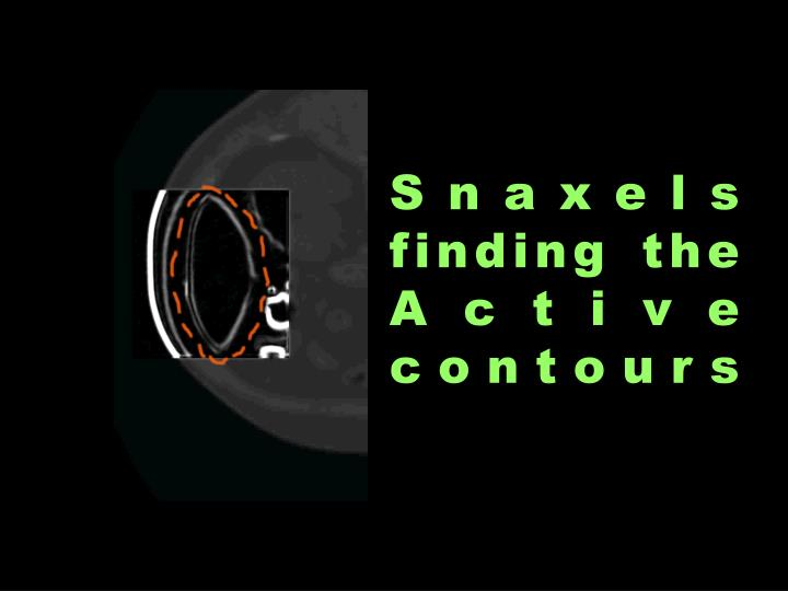 Snaxels finding the Active contours