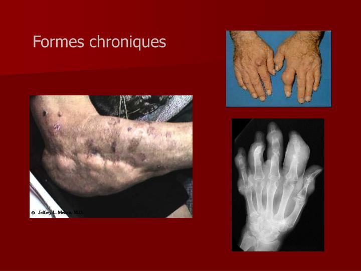 Formes chroniques