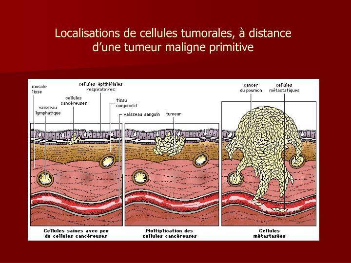 Localisations de cellules tumorales, à distance