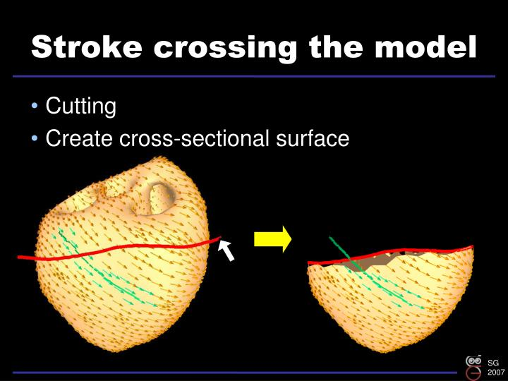 Stroke crossing the model