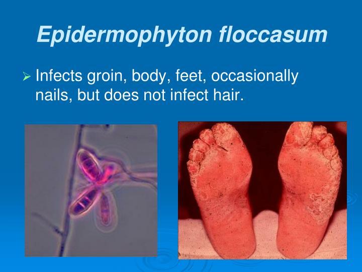 Epidermophyton floccasum