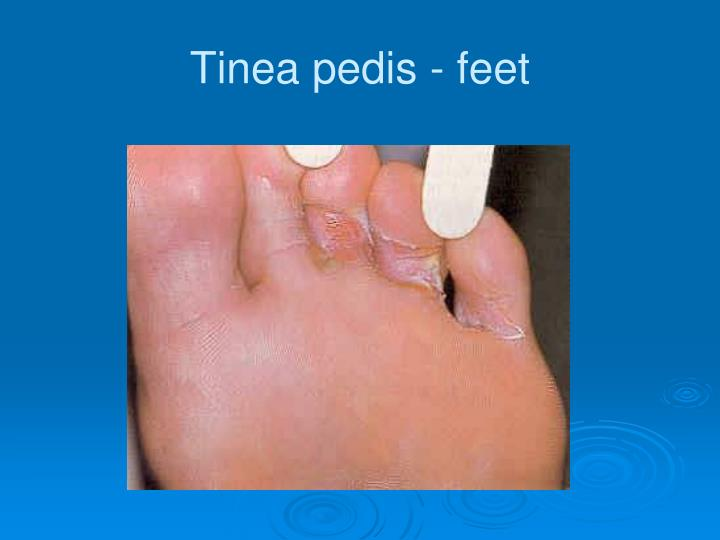 Tinea pedis - feet