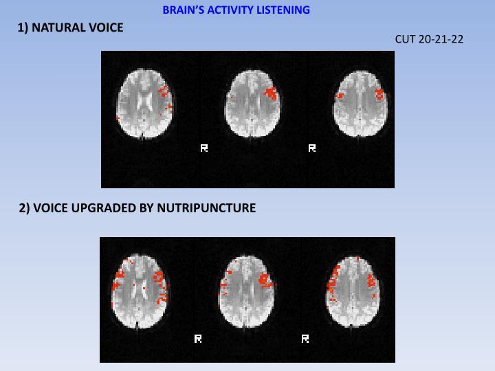 BRAIN'S ACTIVITY LISTENING