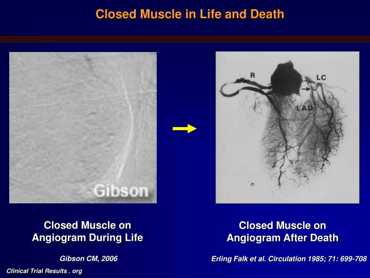 Closed muscle in life and death