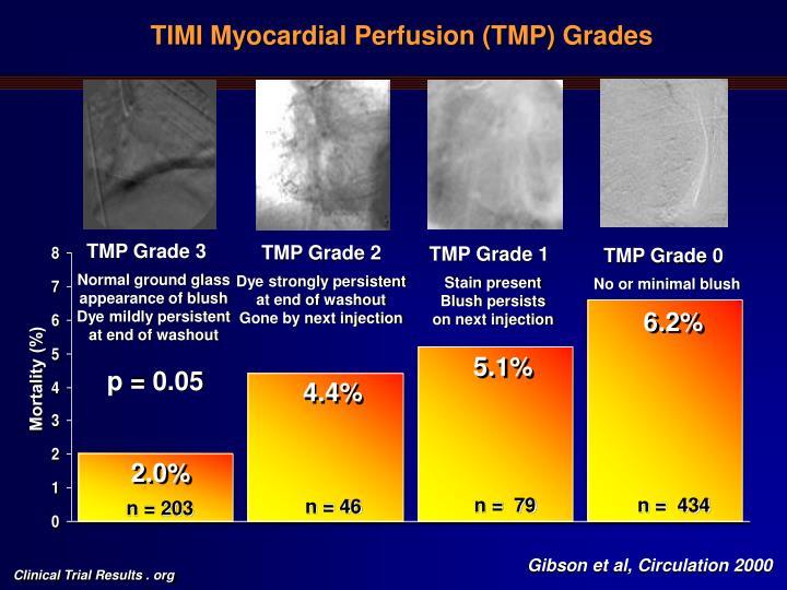 TIMI Myocardial Perfusion (TMP) Grades