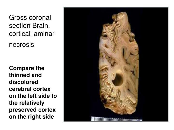 Gross coronal section Brain, cortical laminar necrosis